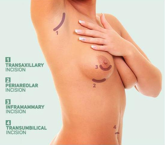 The Vinings breast augmentation surgeon excellent